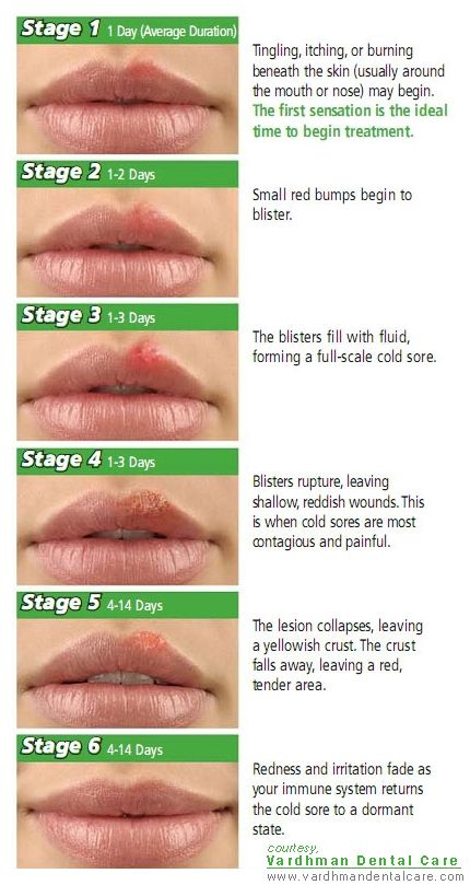 Cold-Sores : Stages of progression of the lesion