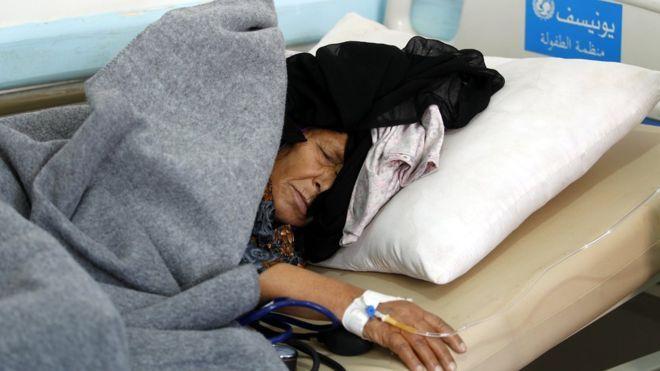 Yemen. A cholera-infected Yemeni woman receives treatment at a hospital amid cholera outbreak in Sanaa, Yemen, 28 May 2017.