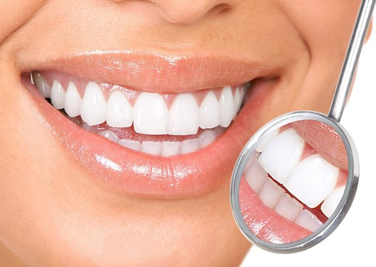 baking soda witte tanden