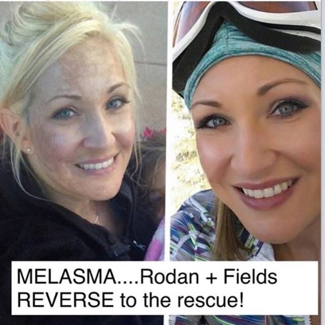 Katie was skeptical about trying Rodan + Fields Reverse for melasma, dark spots and sun damage! Look at her results! Give Rodan + Fields 60 days, and these products will deliver amazing results! Not sure where to start? Message me for a free, quick skin care consultation to get a personalized recommendation. https://michelleskelly.myrandf.biz/Shop/Reverse