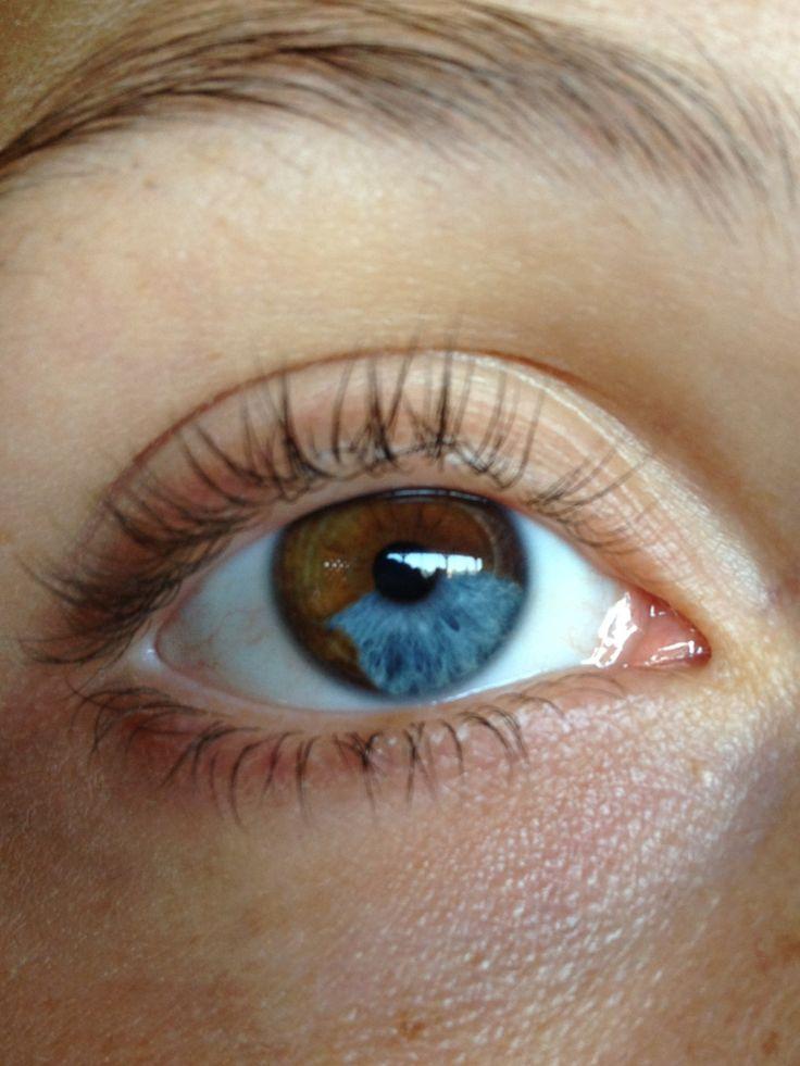 Segmental heterochromia in my left eye but not as pronounced as this