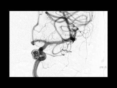 This 5 minute video walks through treatment of a brain aneurysm by coiling. Dr. Coleman Martin at the Saint Luke's Brain and Stroke Institute in Kansas City, Missouri explains the coiling process with models, animation and angiogram footage of an actual coiling.