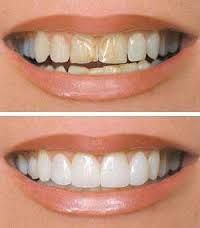 What are dental veneers? If you are concerned about your stained or faded teeth, then, the dental veneers Perth is the best remedial measure for it. These are usually porcelain or ceramic materials which are made into thin laminates. It is then cemented to the surface your tooth to make it look more beautiful. These veneers can also be used to fill the gaps between the teeth.