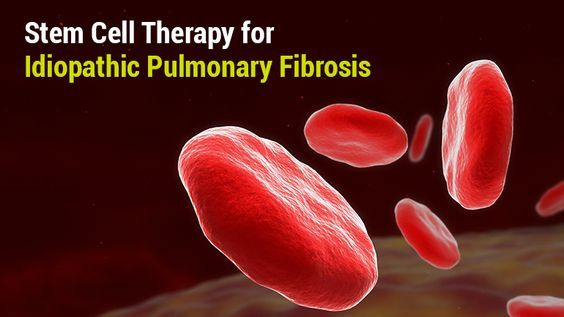 Stem Cell Therapy for Idiopathic Pulmonary Fibrosis