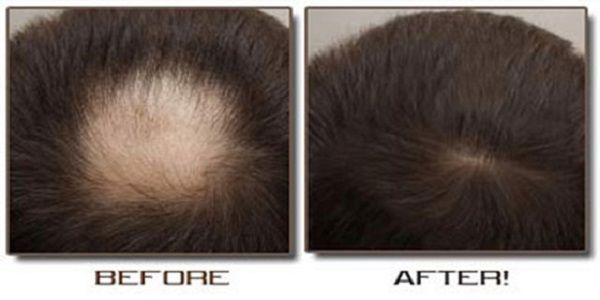 How to grow your hair back using 2 natural ingredients |