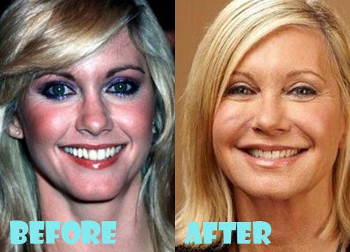 Olivia Newton John Plastic Surgery Before and After Pictures