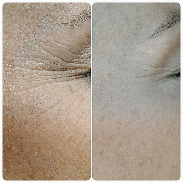 Homemade wrinkle creams are great for skin: hydrating, leveling complexion, reducing wrinkles and aging of the skin. Visible results will appear in a week.