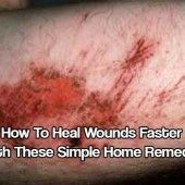 How To Heal Wounds Faster With These Simple Home Remedies
