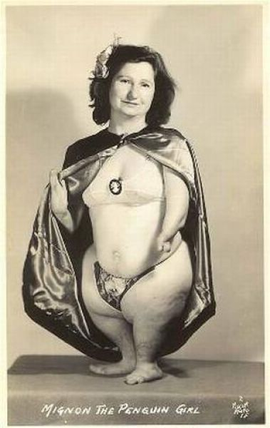 """Ruth Davis  """"Mignon, the Penguin Girl, had a variety of phocomelia, or """"seal limbs"""". In Mignon's case all four of her limbs were affected, leaving her looking very much like a penguin — hence, her stage persona. She gave birth to a son named Tony LaArgo"""""""