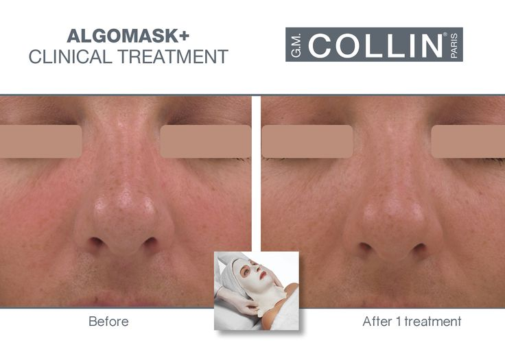 G.M. Collin Algomask+ - Before & After picture #beauty #cosmetics #skincare #clinical #clinicaltreatment #spa #spatreatment #hydration #moisturizing #redness #Algomask #gmcollin #gmcollinparis #gmcollinskincare