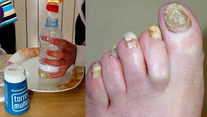 Si en verdad te interesa tener los pies como los de un bebe conoce está súper receta de tan solo 2 ingredientes con la que podrás eliminar los hongos de las uñas para siempre.