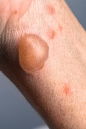Water Blisters