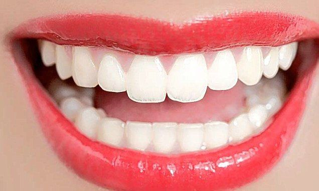 Can a £25 whitening treatment give you a Hollywood smile?