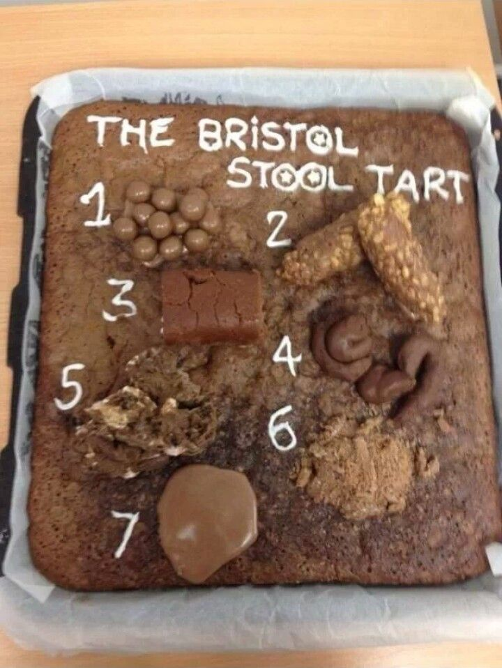 Bristol stool scale cake Amazing Baking Pinterest  : 218cadc661bef653b0e23e682a79d60d from www.pinterest.com size 720 x 958 jpeg 98kB