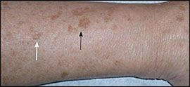 Common Pigmentation Disorders - American Family Physician