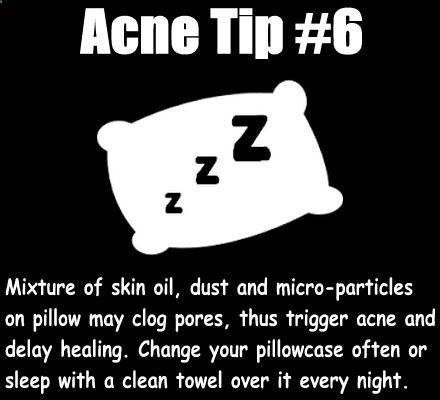 Eliminate Your Acne Tips-Remedies - Mixture of your skin oil, dust and micro-particles on pillow may cause an acne flare or delay acne healing on your face. Change your pillowcase often (such as once a week) or to save your trouble, place a clean towel over your pillow and sleep with it eve - Free Presentation Reveals 1 Unusual Tip to Eliminate Your Acne Forever and Gain Beautiful Clear Skin In 30-60 Days - Guaranteed!