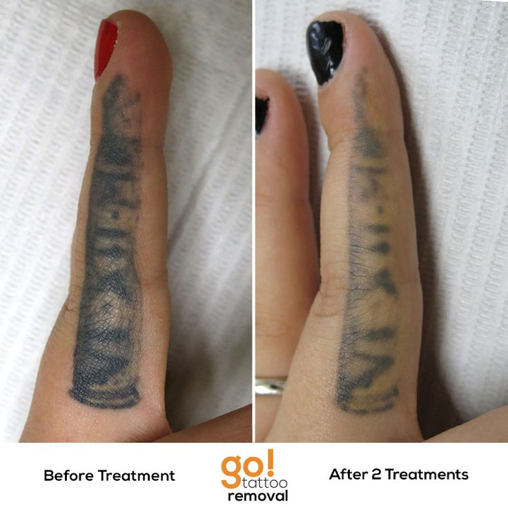This inner finger tattoo had been touched up twice before for Finger tattoos fade