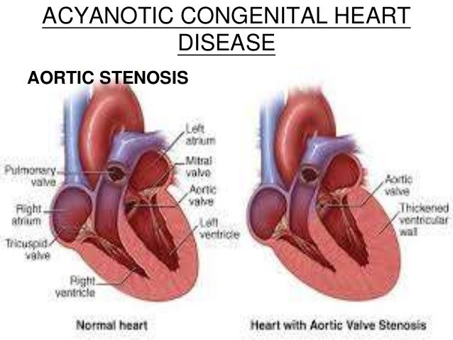 35 Best Aortic Stenosis Images On Pinterest Aortic Stenosis