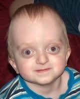 crouzon syndrome - Google Search