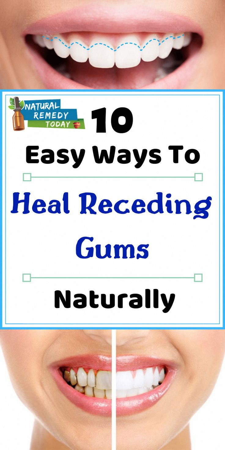 Receding Gums + Heal Receding Gums + Heal Receding Gums