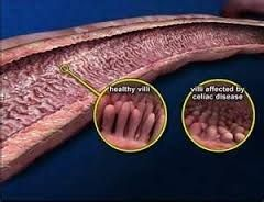 This illustrates the affect that gluten has on the system if you have celiac disease. The damage caused by gluten can be permanent!