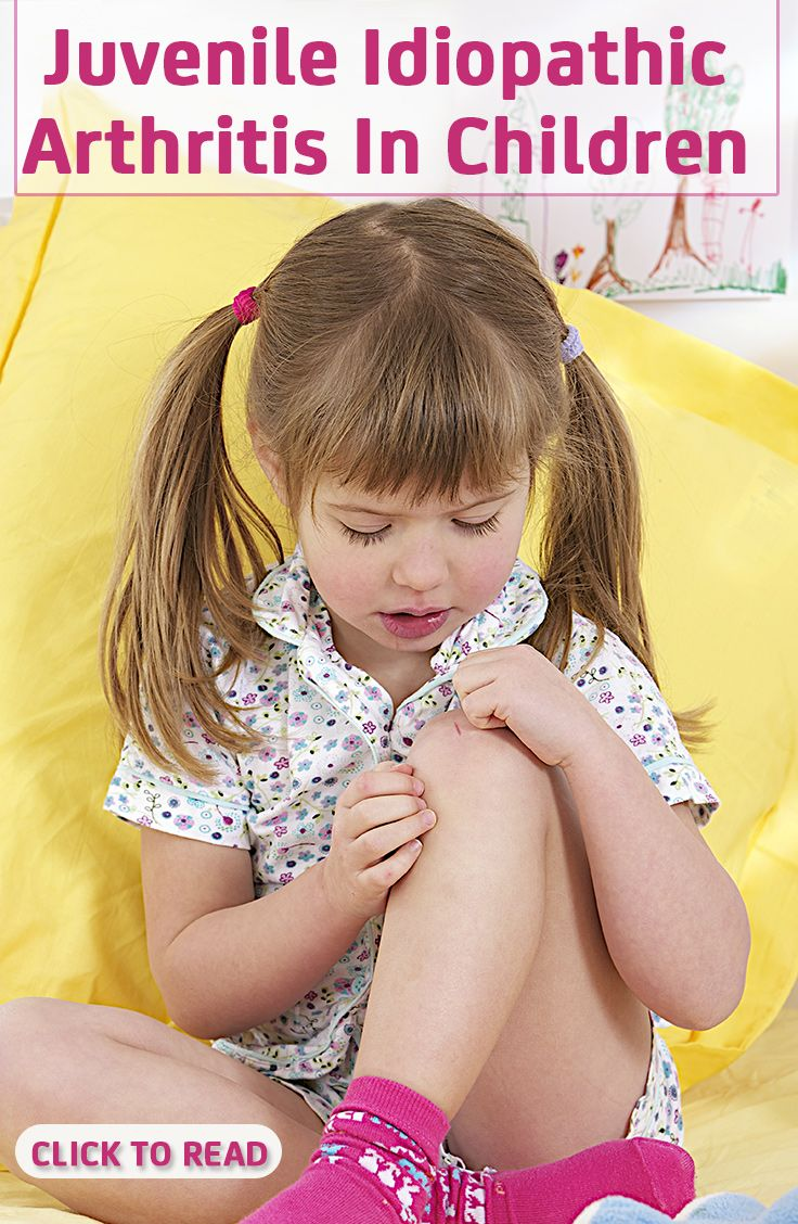 Juvenile Idiopathic Arthritis In Children - 4 Causes, 7 Symptoms & 4 Treatments You Should Be Aware Of