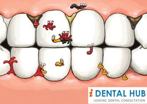 If there is large cavity present in the tooth, then to restore the tooth, dental crown should be given after dental filling. Dental crown will provide strength to the tooth. If only dental filling is done, then tooth will become susceptible to fracture.