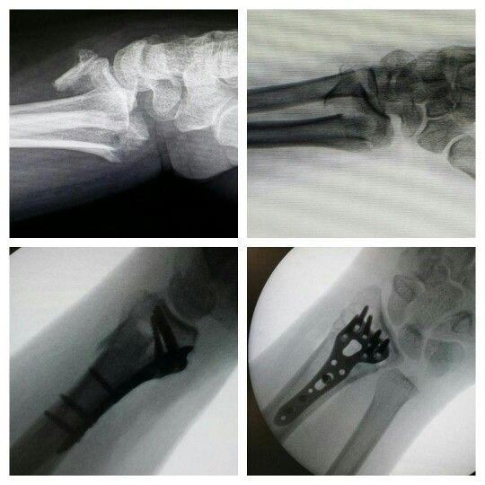 Pac. 42a. Fractura de radio distal. Llevado a cirugia a osteosintesis. #handandupperlimb #handandupperextremity #cirugiamiembrosuperior #cirugiademano