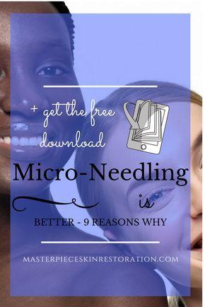 Micro-Needling, compare, lasers, skin rejuvenation, Thermage, microdermabrasion, chemical peels, dark spots
