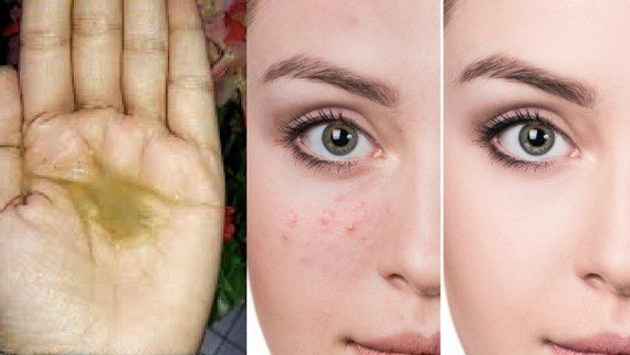 Today I will share neem face wash gel for acne, pimples and spotless skin. Ingredients you will need – 1 teaspoon of tragacanth gum powder (gond) ¼ cup of grated soap (preferably dove because it is not too harsh on skin) One hand full of fresh or dried neem leaves (azadirachta indica) 3 vitamin E …