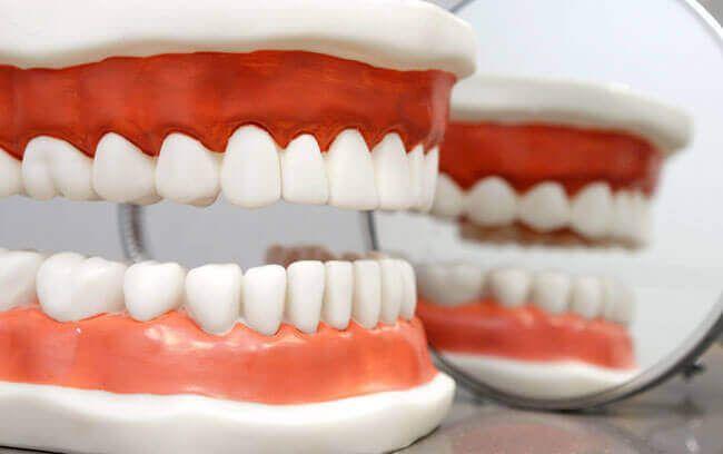 Prótesis dental – Que es, tipos, cuidados, precio