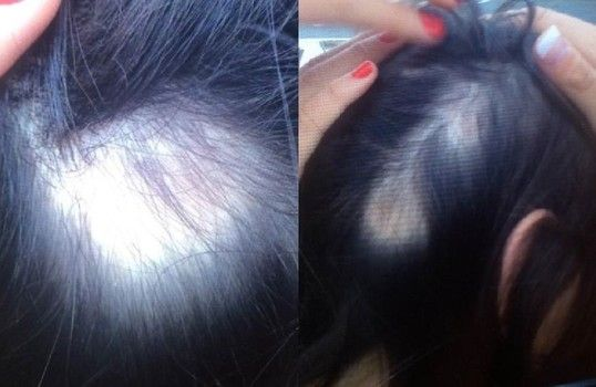 WEN lawsuit filed: 200 women cite hair loss woes from $30 WEN shampoo