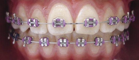 ¿Usar brackets produce caries? | TuOdontologa.com Blog