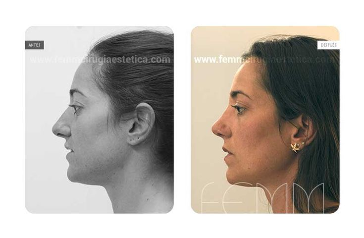 Fotografías antes y después de una cirugía plástica de rinoplastia abierta realizada a una paciente. Las fotografías del postoperatorio se realizan al mes de la intervención.