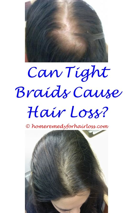 dog hair loss on sides of body - how long after waxing should you have permanent hair loss.can estrogen blockers cause hair loss gingelly oil for hair loss dermatologist hair loss specialist san antonio 9680177747
