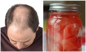 remedio casero para la caida del cabello