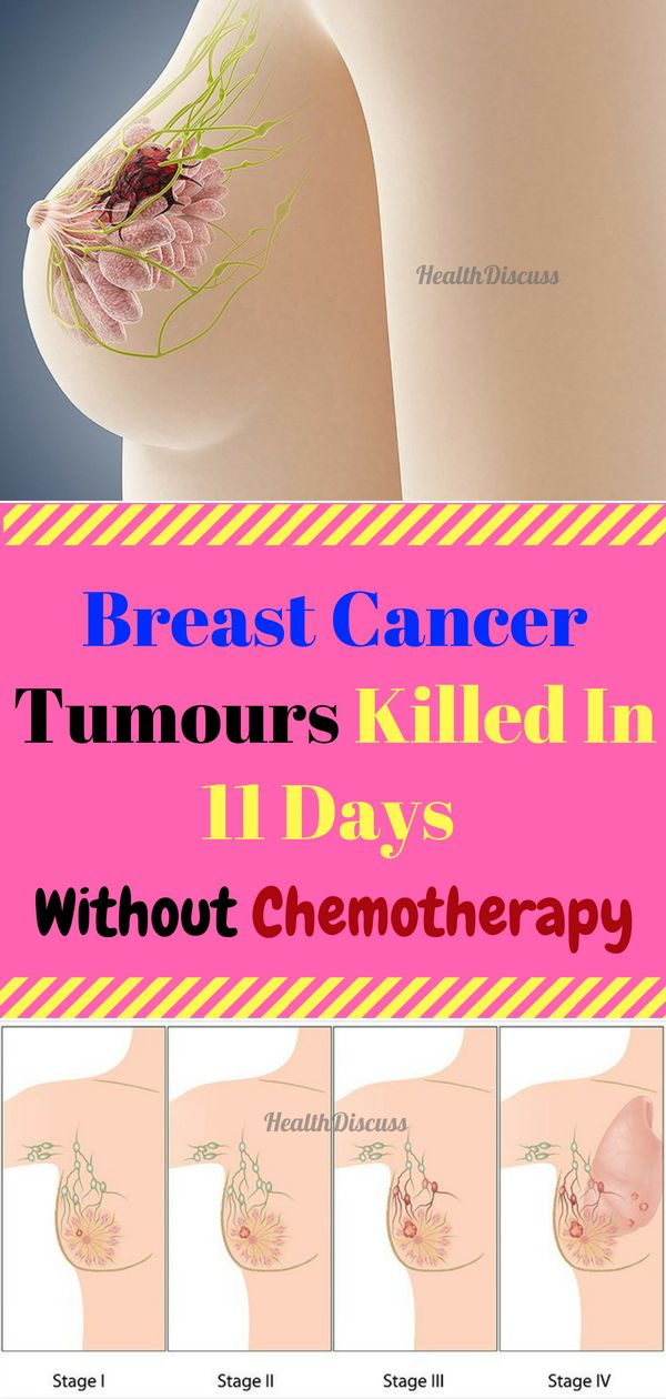 Breast Cancer Tumours Killed In 11 Days Without ...
