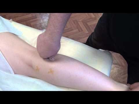 Освобождение мышцы от триггерных точек. Давление на триггерную точку. - YouTube