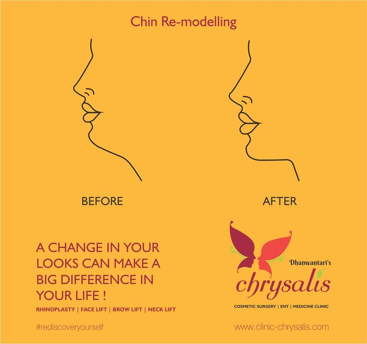 A CHANGE IN YOUR LOOKS CAN MAKE A BIG DIFFERENCE IN YOUR LIFE !  The face is the first thing that people see when they meet you and it is therefore easy to have your confidence knocked if you are insecure about a particular feature. If you feel like this because of the size or shape of your chin, then you are not alone and our chin implant surgery might be the solution. Ravet- D.Y.Patil college road, Ravet, Pune - 412101  for more details you can Contact no:7057669340…
