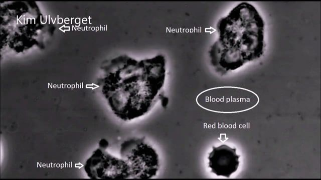 This video shows several neutrophil immune cells moving around in human blood.  You will also see a pointy red blood cell floating across the screen. (Echinocytes). The blood plasma is full of fatty acids, which appears as small moving particles.   The reason for all the particles is due to the blood being taken only minutes after a big meal.  The immune cells you see here move around in the blood mainly picking up waste and debris.  This type of immune cell is also known for being the…
