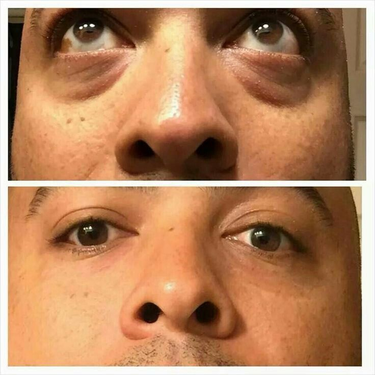 Instantly Ageless, instant results within minutes. Eye bags gone instantly.