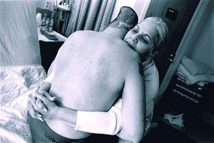 """""""War is Personal"""" é uma foto de Eugene Richards que mostra um soldado americano da Guerra do Iraque. Perdeu metade da cabeça, mas sobreviveu. Eugene Richards"""