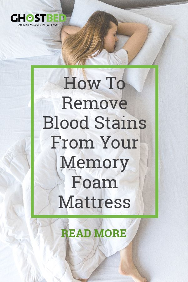 How To Remove Blood Stains From Your Memory Foam Mattress