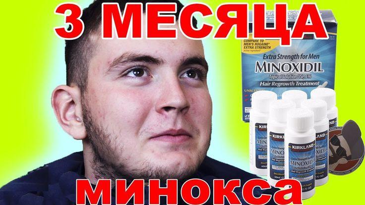 Миноксидил 3 месяца, отзыв Макса,  РЕЗУЛЬТАТ ОГОНЬ!!!