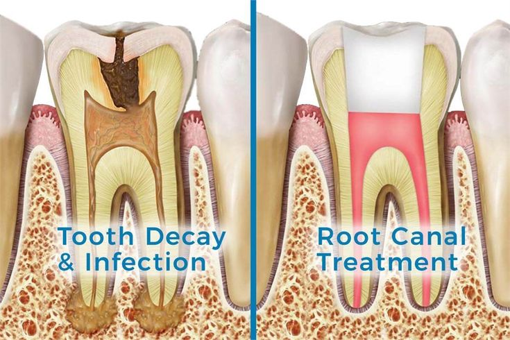 If you have a dental abscess our root canal specialists