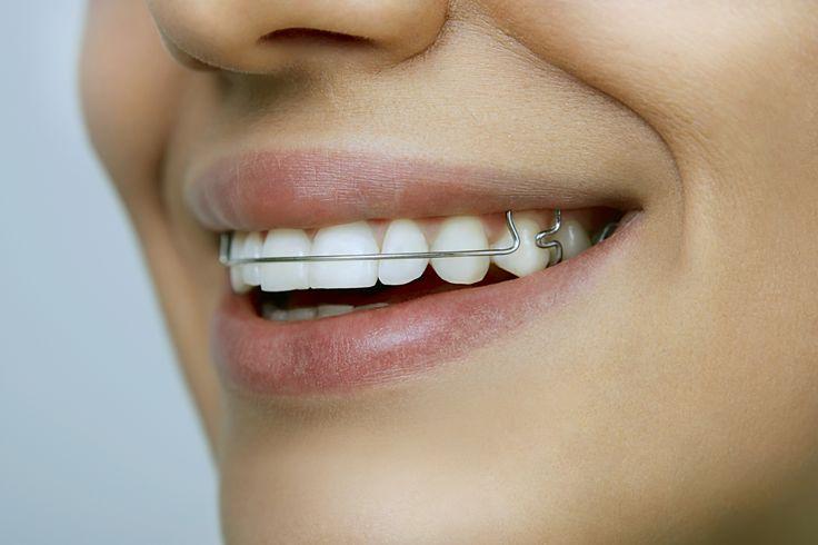 Chcesz poprawić swój uśmiech? Dowiedz się więcej o aparatach ortodontycznych. http://www.ortodoncja.cieslik.eu/aparaty-ortodontyczne/