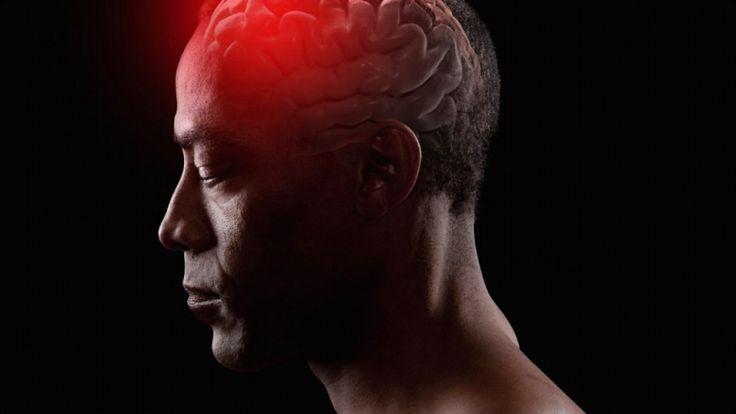 Aneurisma Cerebral – O que é, Causas, Sintomas e Tratamentos
