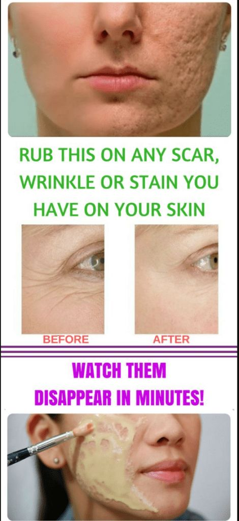 RUB THIS MIXTURE ON ANY SCAR, WRINKLES, OR STAIN Y…