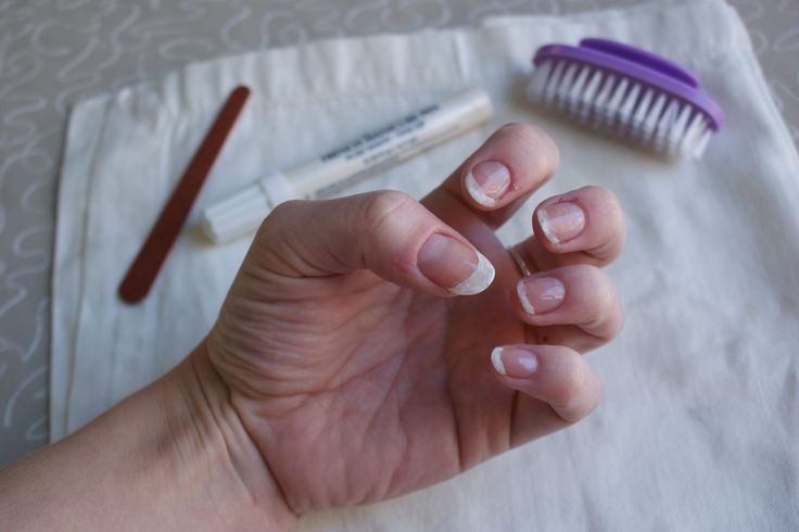 Well-manicured hands help to make women look well groomed and professional. Keeping the underside of your nails white is part of the process of having manicured hands. Some people have trouble making their nails look white due to yellowing of the nails, brittle nails and other issues. Creating the illusion that the underside of your …