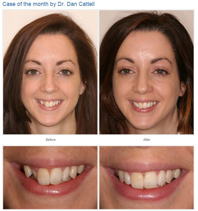 Case by Dr. Dan Cattell, Gentle Dentistry.  Use our Find a Dentist search engine to find a certified dentist near you! www.inmanaligner.com
